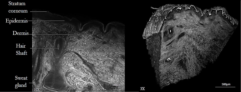 SPIM imaging of the skin
