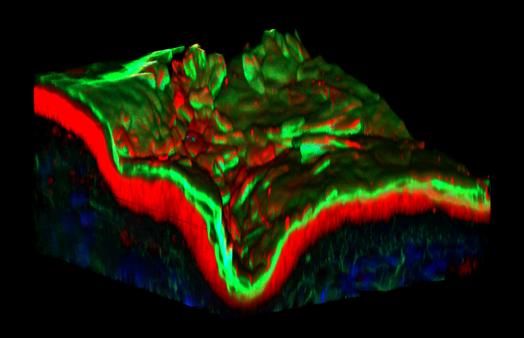 biphoton confocal 3D modeling skin explant