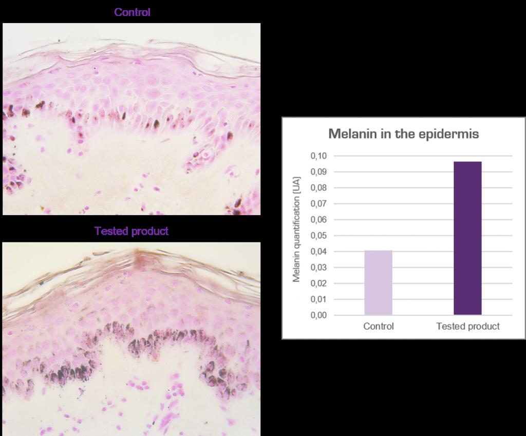 Melanin histology in skin explant