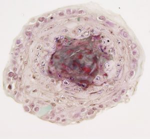 Epidermal spheroid