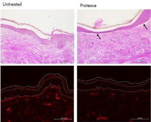 Digestion in the dermoepidermal junction Collagen in skin explant